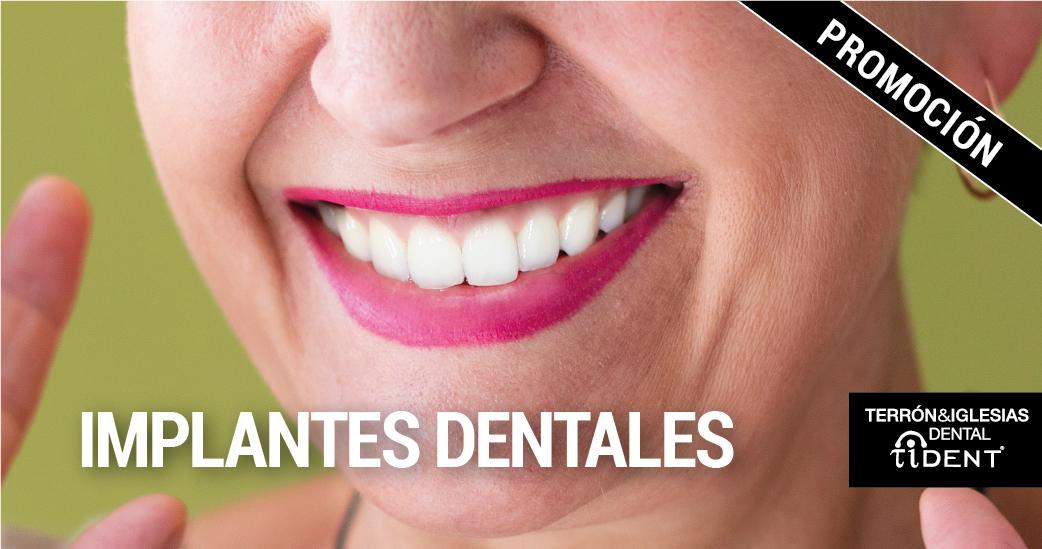 implantes-dentales-ok-02