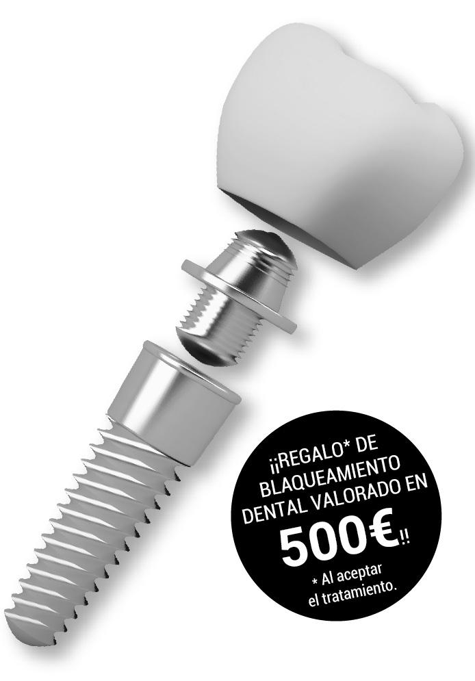 implante-dental-caceres